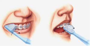 4 Hướng dẫn vệ sinh răng miệng khi mang mắc cài